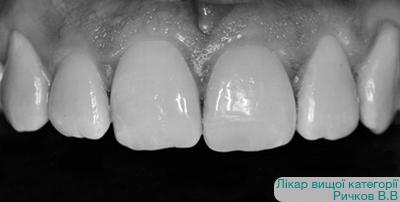 Дефект ріжучого краю 21 зуба